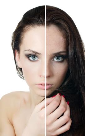Behandlung unreine Haut - Skinline Cosmetics - Kosmetikstudio Offenbach am Main
